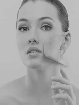 Acne Treatment Services London