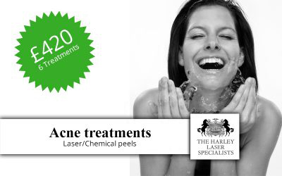 London Acne Treatment Offer