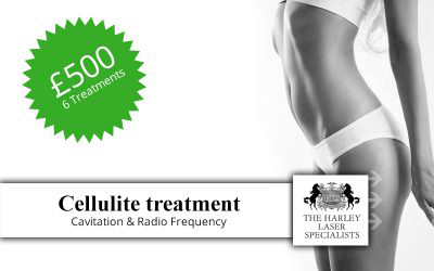 London Cellulite Treatment Offer