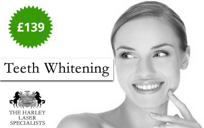 London Teeth Whitening Special Offer