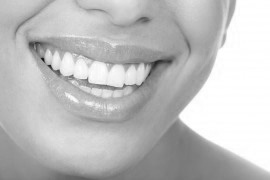 Laser Teeth Whitening London Service