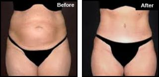 London Fat Reduction Treatment
