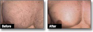 Men Laser Hair Removal London