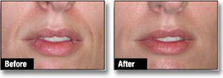 Dermal filler before & after 3